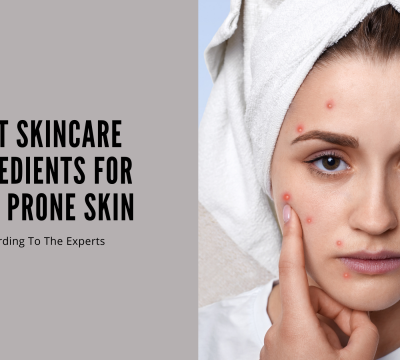 Best Skincare Ingredients For Acne Prone Skin