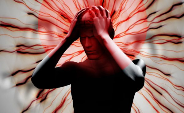 Migraine- Causes, Symptoms, Triggers & Prevention