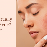 What Actually Causes Acne