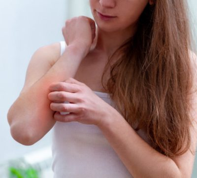 Types & Symptoms Of A Heat Rash