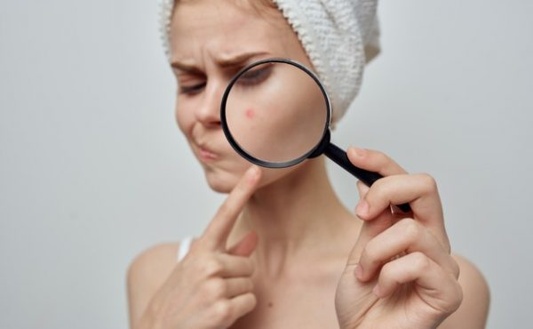 What Is Pregnancy Acne- Causes and Treatment